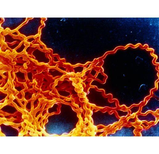 Бактерията лептоспири