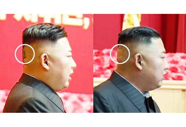 Лепенката на главата на Ким Чен Ун